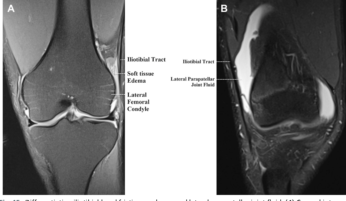 Figure 15 From Normal Mr Imaging Anatomy Of The Knee Semantic Scholar
