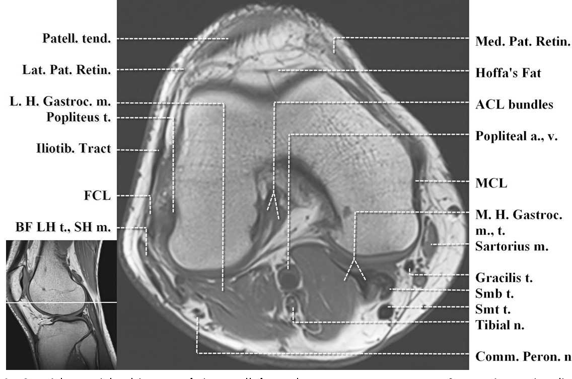 Figure 2 from Normal MR imaging anatomy of the knee. - Semantic Scholar