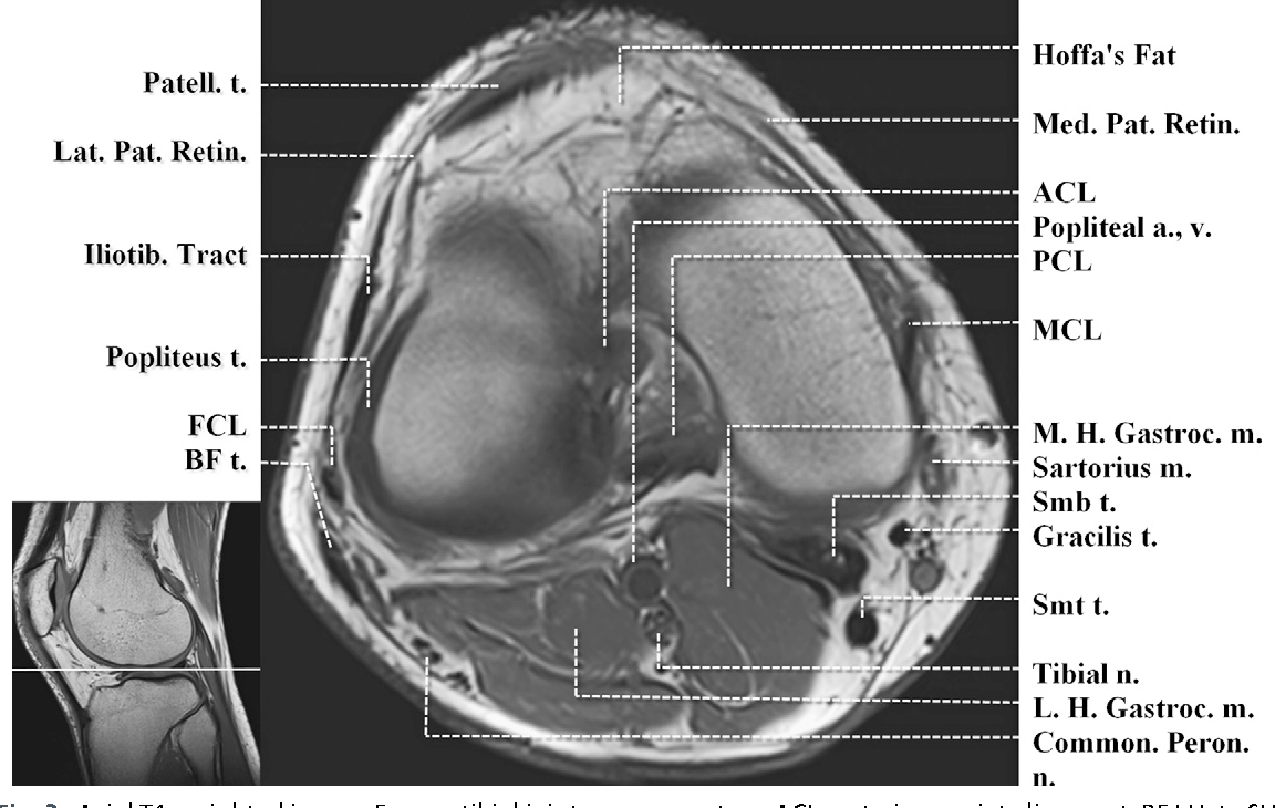 Figure 3 from Normal MR imaging anatomy of the knee. - Semantic Scholar