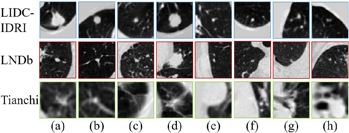 Figure 1 for MVCNet: Multiview Contrastive Network for Unsupervised Representation Learning for 3D CT Lesions