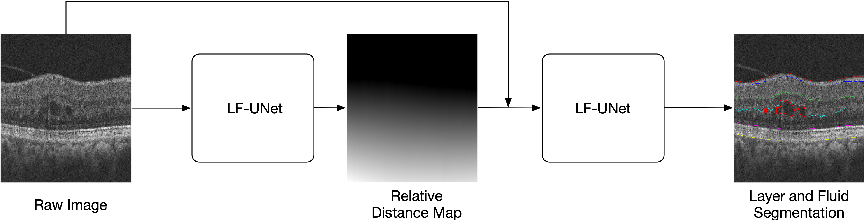 Figure 1 for Cascaded Deep Neural Networks for Retinal Layer Segmentation of Optical Coherence Tomography with Fluid Presence
