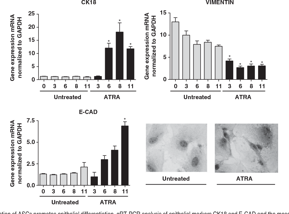 Figure 3 ATRA stimulation of ASCs promotes epithelial differentiation. qRT-PCR analysis of epithelial markers CK18 and E-CAD and the mesenchymal marker vimentin. Total RNA was extracted from ASCs cultured for 1 to 11 days with ATRA (black columns) or with control medium (gray columns). A sample of ASCs on day 0 was analyzed as control. n¼ 4. Data are means±S.D. *Po0.05 versus untreated. Immunocytochemistry of the epithelial marker CK18. A perinuclear gray area in ASCs cultured for 11 days was observed after incubation with ATRA (day 11). No staining was observed in untreated cells. Nuclei were hematoxylin stained. A representative image from four independent experiments is shown. Magnification 40