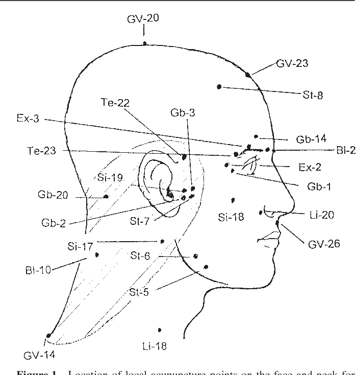 Practical Recommendations For The Use Of Acupuncture In The