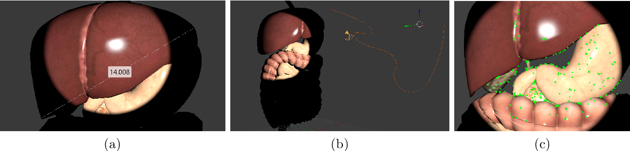 Figure 3 for Augmented Reality for Depth Cues in Monocular Minimally Invasive Surgery