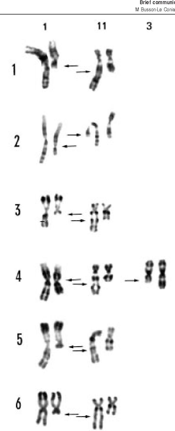 Figure 1 Partial karyotypes of patients 1 to 6 (see Table 1) showing the t(1;11)(q21;q23). R bands (R) and G bands (G). Arrows show the rearranged chromosomes.