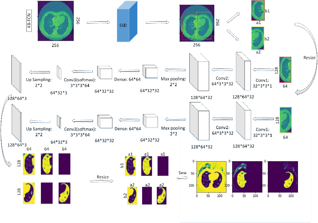 Figure 1 for Knowledge-based Fully Convolutional Network and Its Application in Segmentation of Lung CT Images