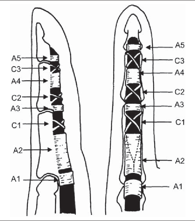 Figure 3 From Flexor Tendon Pulley Injury In A Bowler Semantic