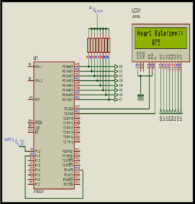 Figure 5 from Heartbeat rate monitoring system by pulse technique
