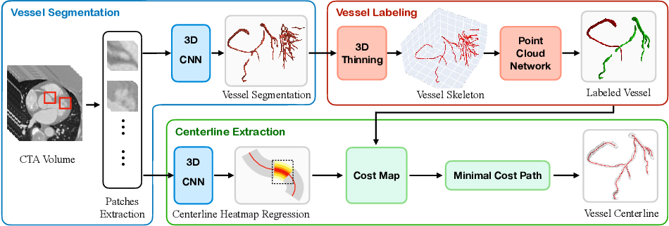 Figure 1 for Learning Hybrid Representations for Automatic 3D Vessel Centerline Extraction