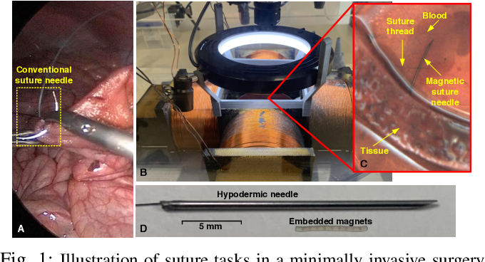 Figure 1 for Localization and Control of Magnetic Suture Needles in Cluttered Surgical Site with Blood and Tissue