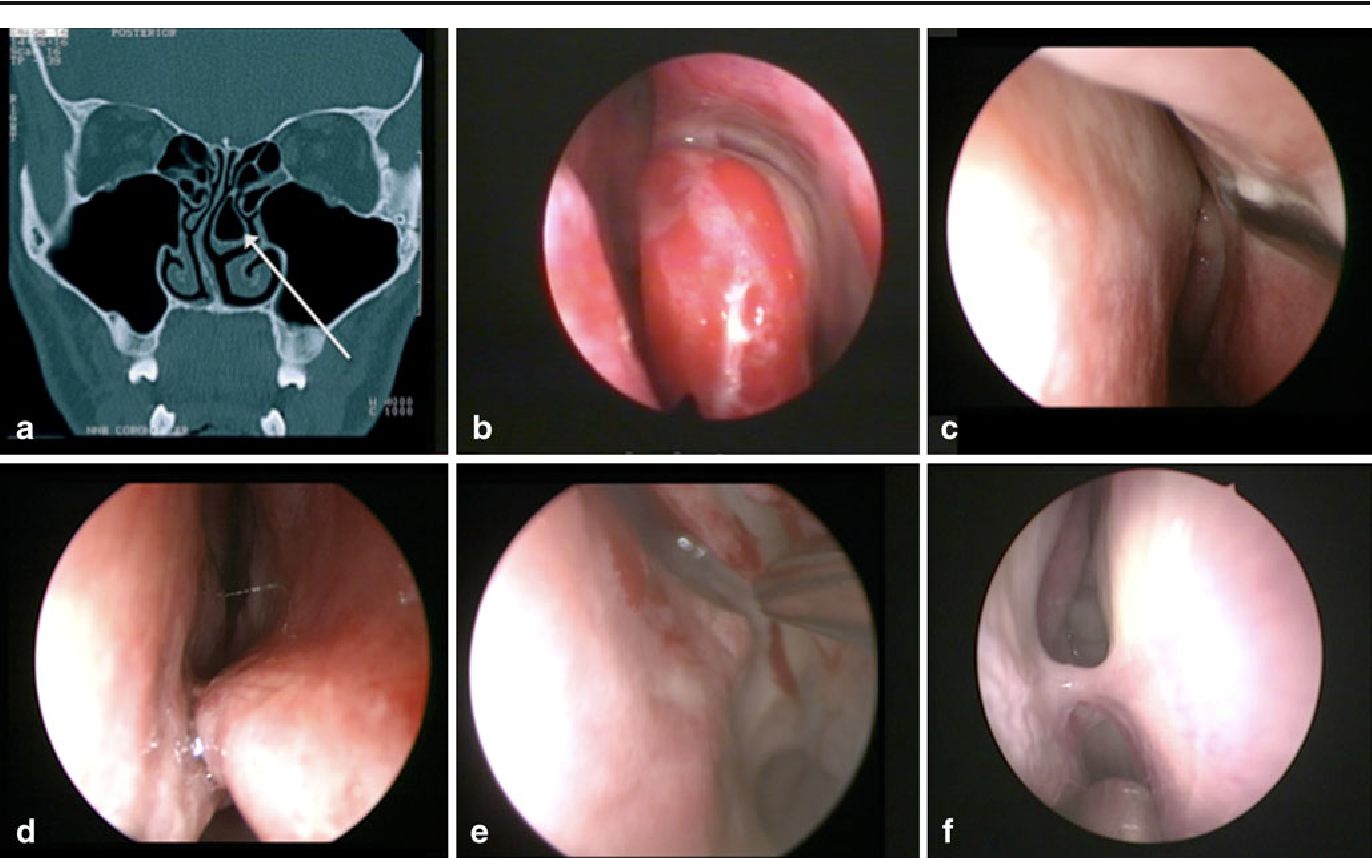 Variations of endonasal anatomy: relevance for the endoscopic ...