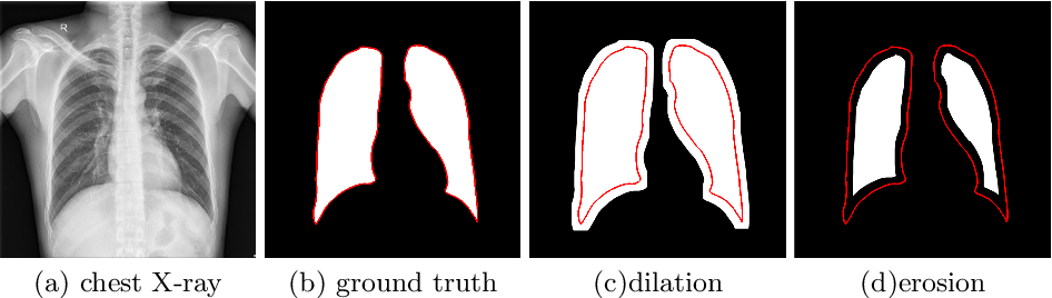 Figure 3 for Cascaded Robust Learning at Imperfect Labels for Chest X-ray Segmentation