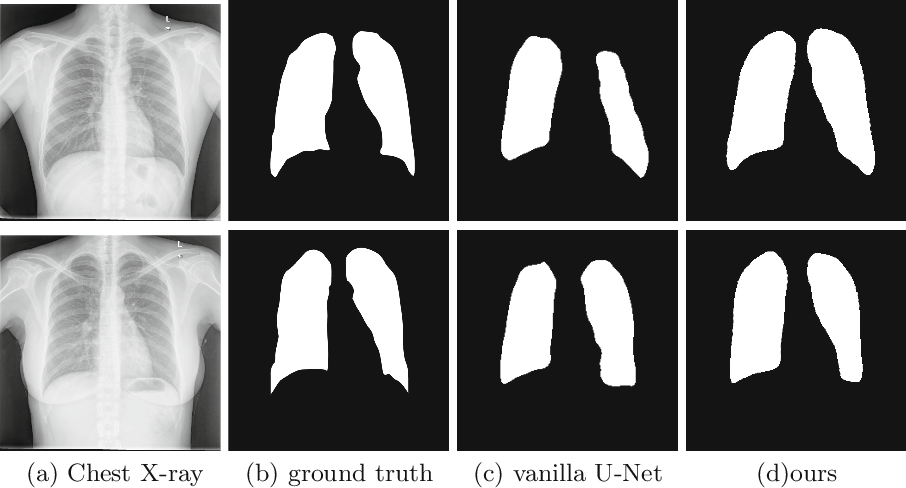 Figure 4 for Cascaded Robust Learning at Imperfect Labels for Chest X-ray Segmentation