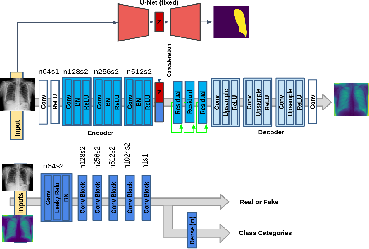 Figure 1 for Informative sample generation using class aware generative adversarial networks for classification of chest Xrays