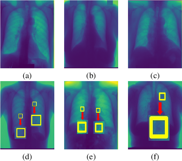 Figure 3 for Informative sample generation using class aware generative adversarial networks for classification of chest Xrays