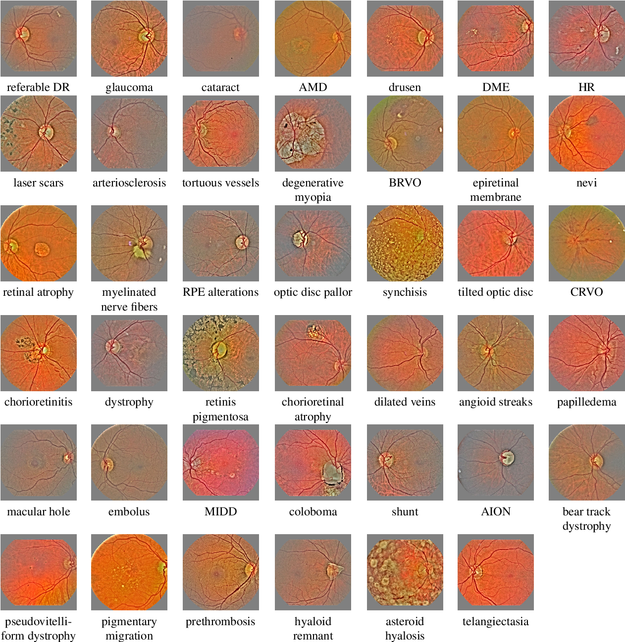 Figure 3 for Automatic detection of multiple pathologies in fundus photographs using spin-off learning