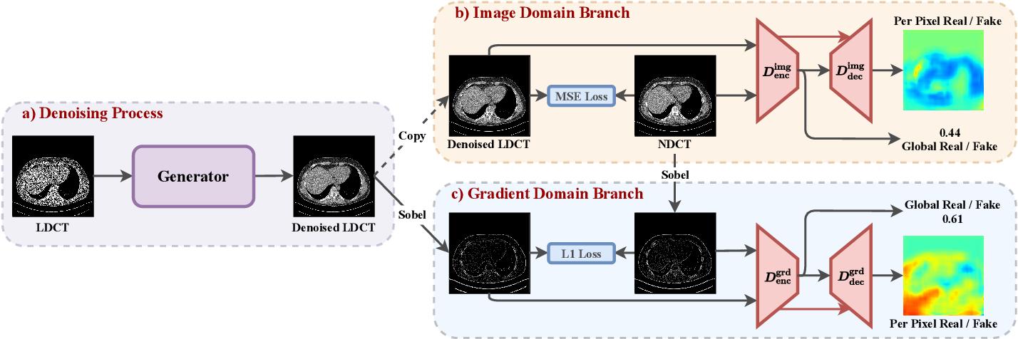 Figure 1 for DU-GAN: Generative Adversarial Networks with Dual-Domain U-Net Based Discriminators for Low-Dose CT Denoising