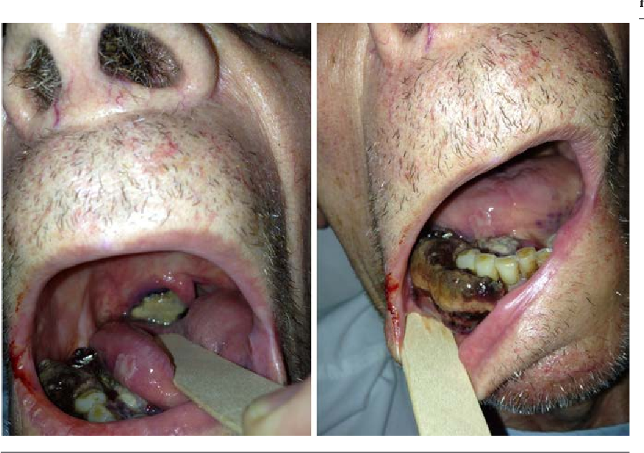 Angiosarcoma: A Case Report of Gingival Disease with Both Palatine ...