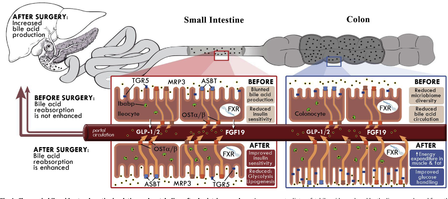 Figure 4 From Bile Acids And Bariatric Surgery Semantic Scholar