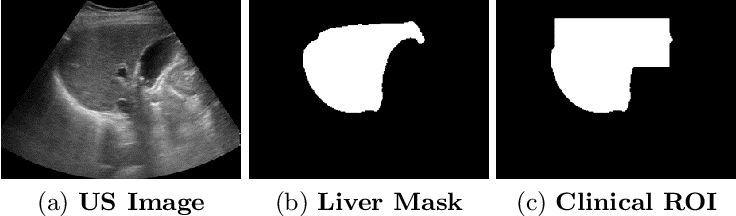 Figure 3 for Reliable Liver Fibrosis Assessment from Ultrasound using Global Hetero-Image Fusion and View-Specific Parameterization