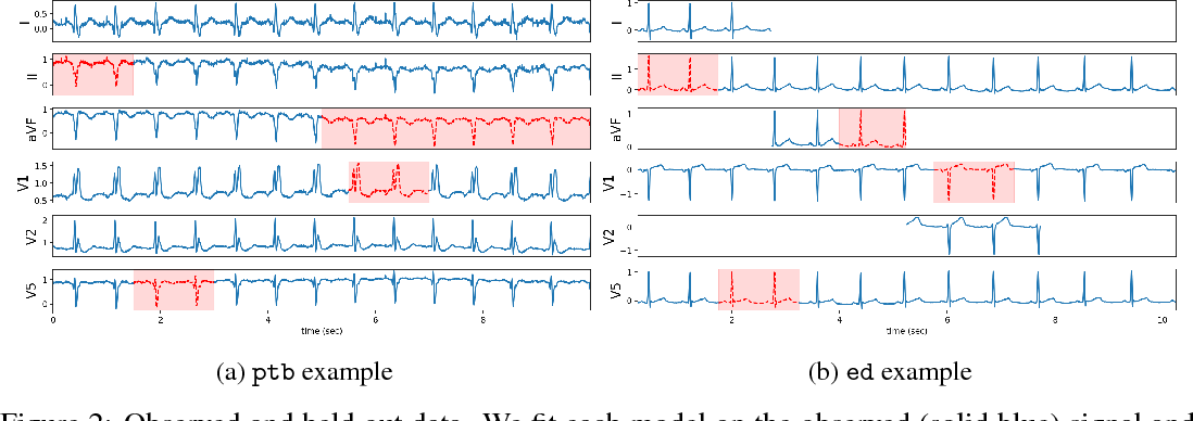 Figure 2 for A Probabilistic Model of Cardiac Physiology and Electrocardiograms
