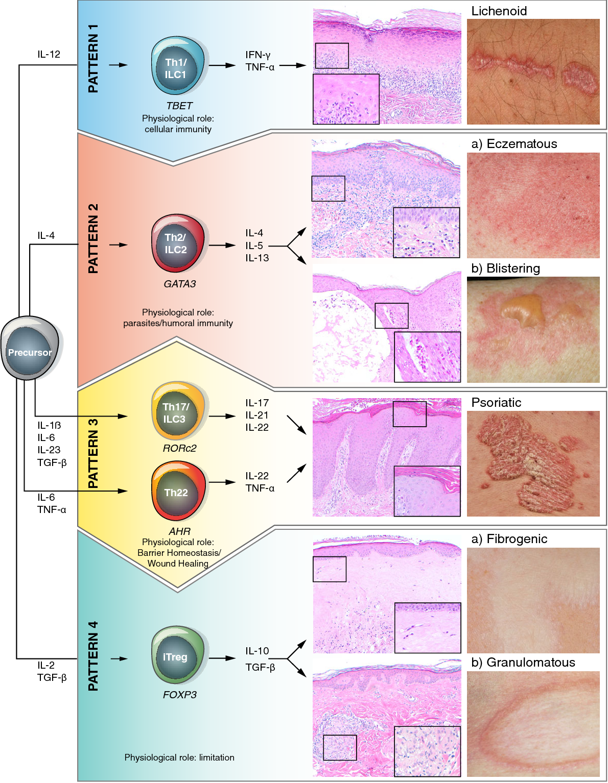 Figure 2 from Immune response patterns in non‐communicable