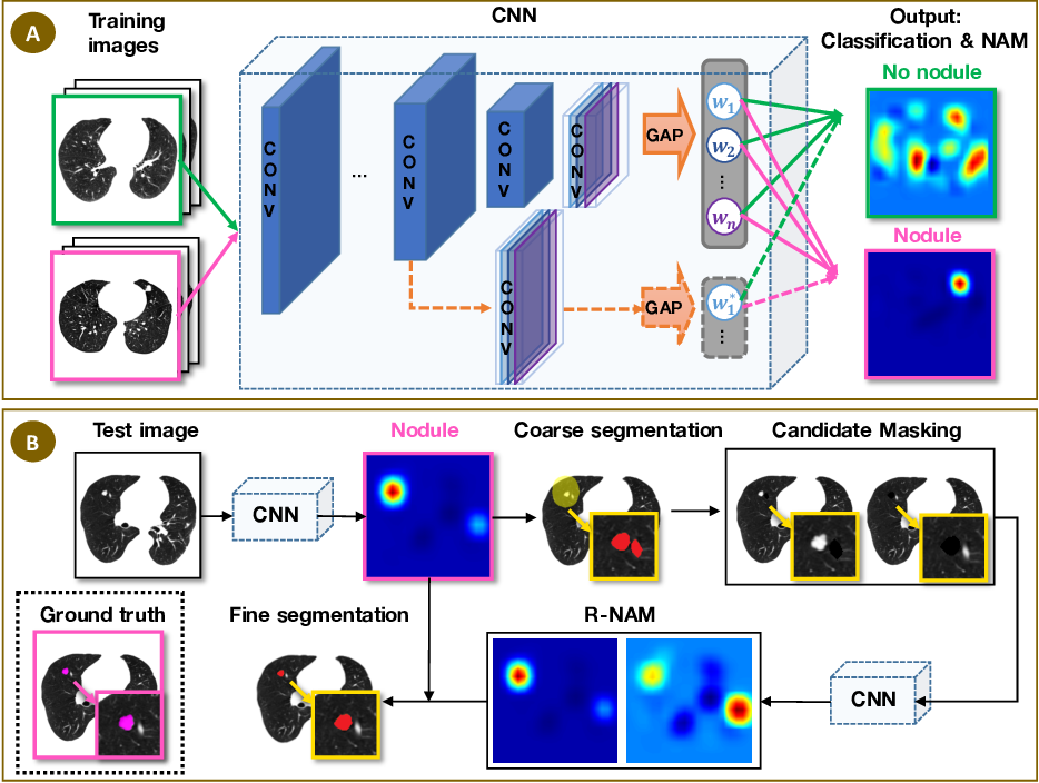 Figure 1 for Discriminative Localization in CNNs for Weakly-Supervised Segmentation of Pulmonary Nodules