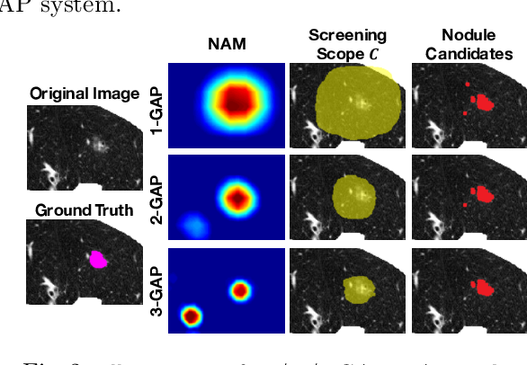 Figure 3 for Discriminative Localization in CNNs for Weakly-Supervised Segmentation of Pulmonary Nodules
