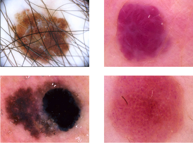 Figure 1 for Skin cancer detection based on deep learning and entropy to detect outlier samples