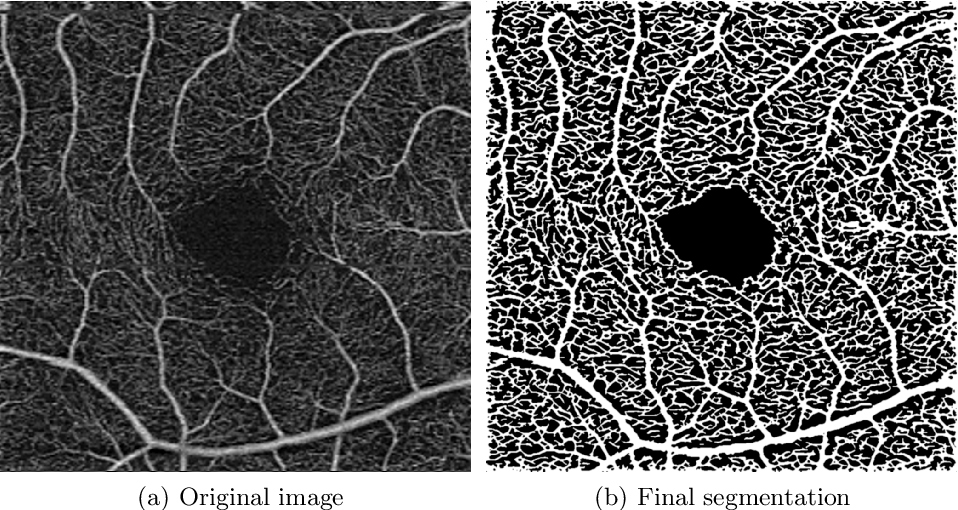 Figure 3 for Blood vessel segmentation in en-face OCTA images: a frequency based method