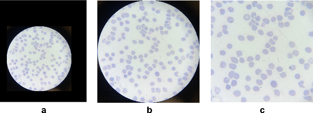Figure 3 for A Dataset and Benchmark for Malaria Life-Cycle Classification in Thin Blood Smear Images