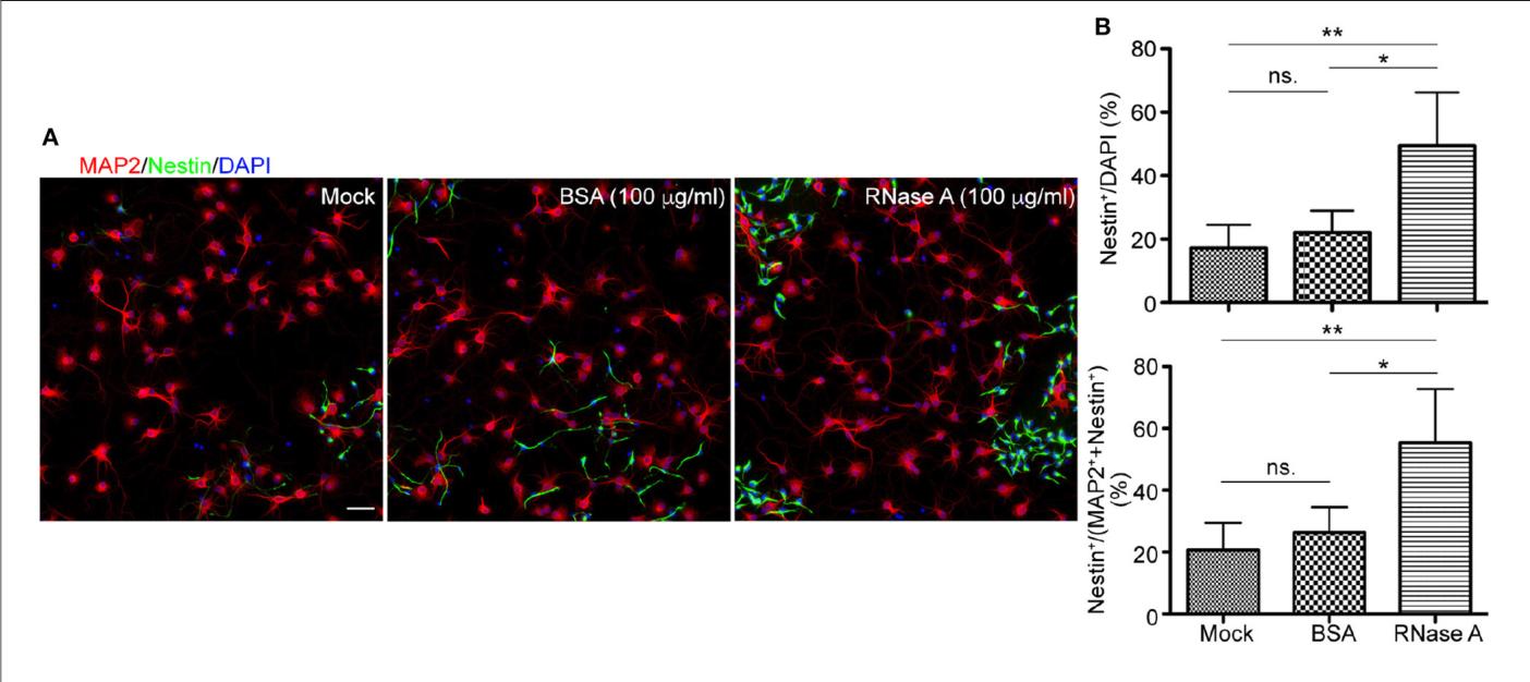 PDF] RNase A Promotes Proliferation of Neuronal Progenitor