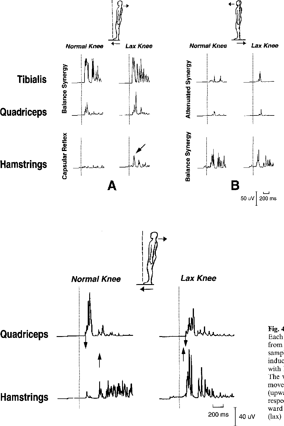 Figure 4 from Effect of knee joint laxity on long-loop postural