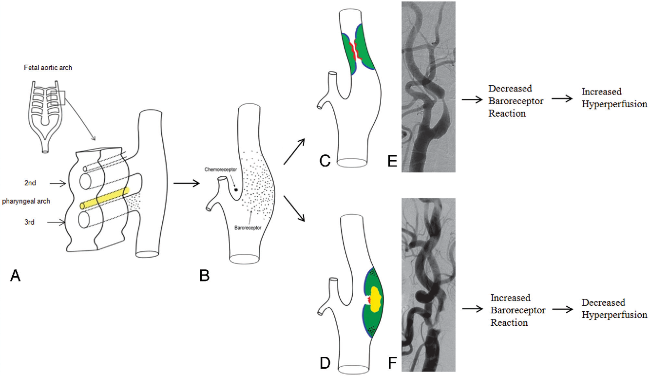 Carotid Baroreceptor Reaction After Stenting In 2 Locations Of