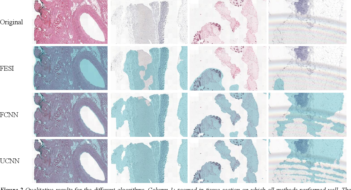 Figure 4 for Comparison of Different Methods for Tissue Segmentation in Histopathological Whole-Slide Images
