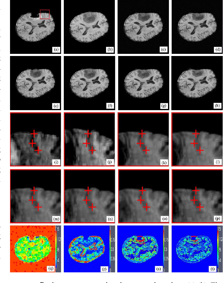 Figure 3 for Scale Selection of Adaptive Kernel Regression by Joint Saliency Map for Nonrigid Image Registration