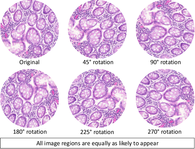 Figure 1 for Dense Steerable Filter CNNs for Exploiting Rotational Symmetry in Histology Images