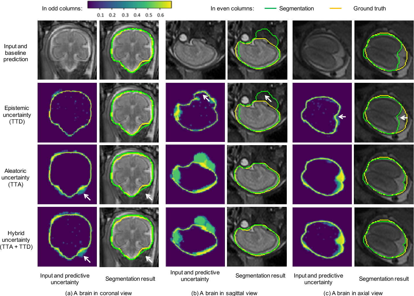 Figure 1 for Aleatoric uncertainty estimation with test-time augmentation for medical image segmentation with convolutional neural networks