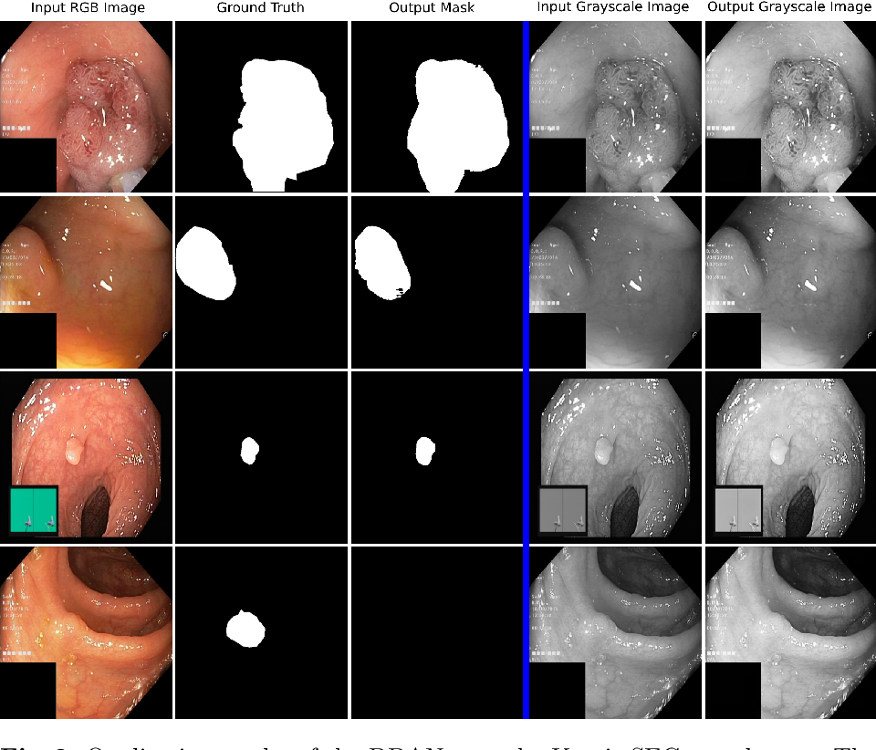 Figure 2 for DDANet: Dual Decoder Attention Network for Automatic Polyp Segmentation