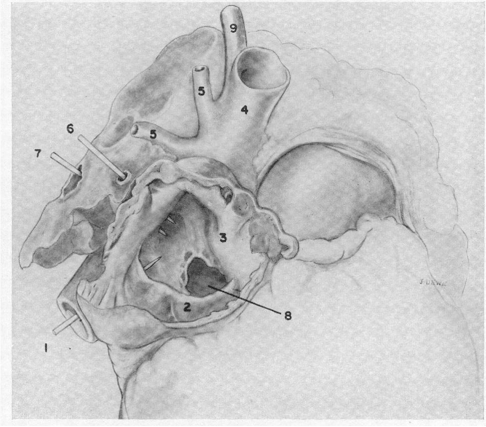 Figure 6 from The valve of the inferior vena cava. - Semantic Scholar