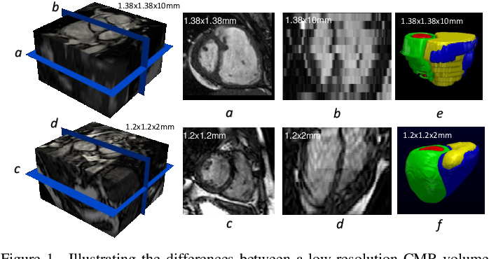 Figure 1 for Automatic 3D bi-ventricular segmentation of cardiac images by a shape-constrained multi-task deep learning approach