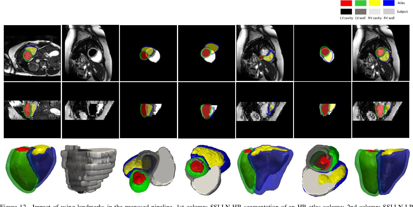 Figure 4 for Automatic 3D bi-ventricular segmentation of cardiac images by a shape-constrained multi-task deep learning approach