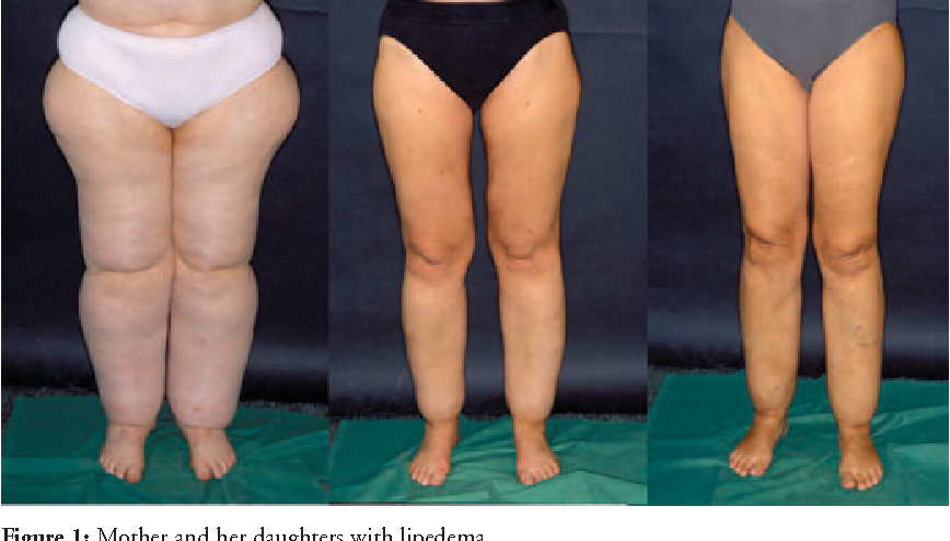 Figure 1 from Liposuction is an effective treatment for lipedema