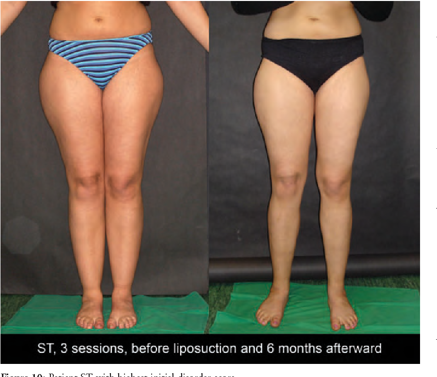 Figure 10 from Liposuction is an effective treatment for lipedema