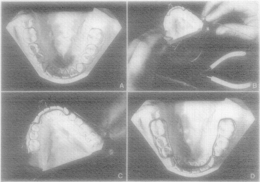Figure 4 From Fabrication Of The Acrylic Splint Herbst Appliance