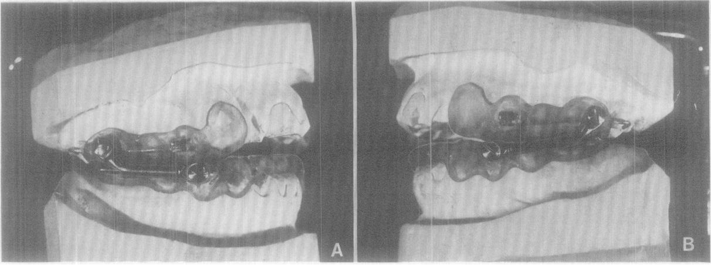 Figure 12 From Fabrication Of The Acrylic Splint Herbst Appliance