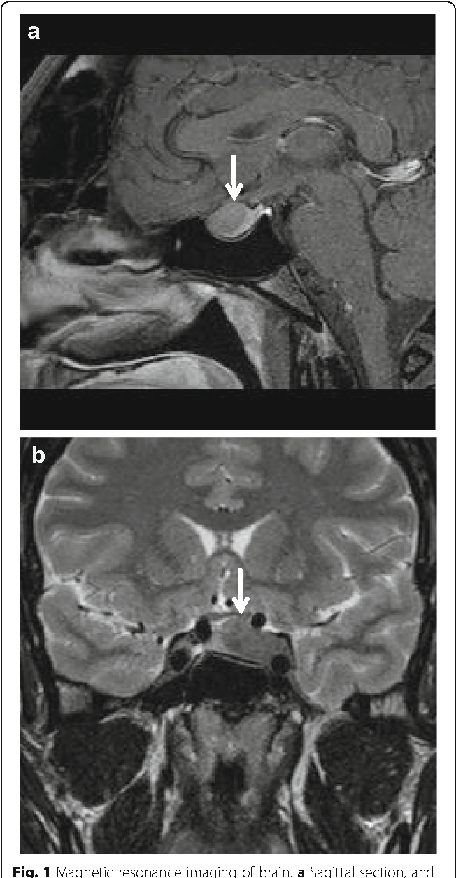 Fig. 1 Magnetic resonance imaging of brain. a Sagittal section, and b coronal section; arrow indicates pituitary tumor