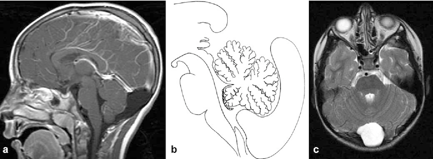 A different approach to cysts of the posterior fossa - Semantic Scholar