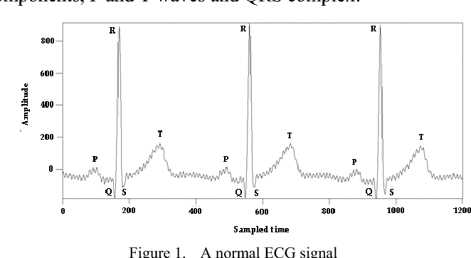 Figure 3 from Noised abnormal ECG signal analysis by combining EMD