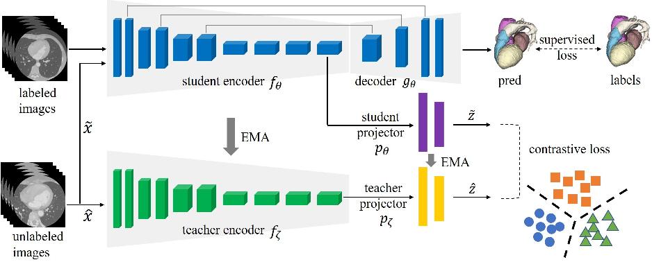 Figure 1 for Self-Ensembling Contrastive Learning for Semi-Supervised Medical Image Segmentation